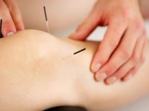 Acupuncture Joint & Back Pain Chiro Continuing Ed