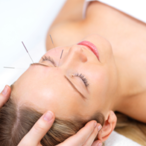 Acupuncture for Insomnia Chiro Continuing Ed