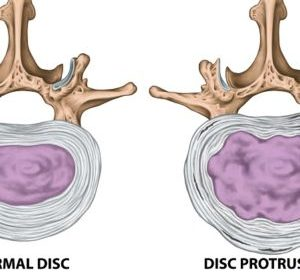 Chiropractic Courses on Disc Bulge and Protrusion