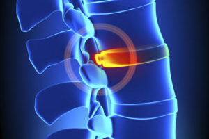 chiropractic courses on Disc bulge and herniation