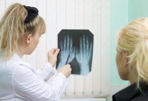 Arthritis Diagnosis