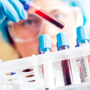 Most Common Blood Tests