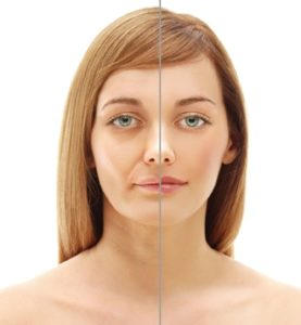 Bell's Palsy Course