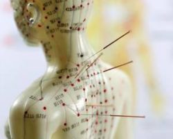 Understanding Safety with Anatomy & Acupuncture