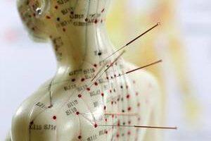 Understanding Safety with Anatomy & Acupuncture