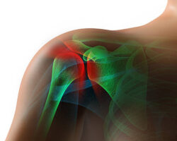 High resolution 3D rendering of an injured shoulder in pain.  Composite image of x-ray includes clipping plane for background change.